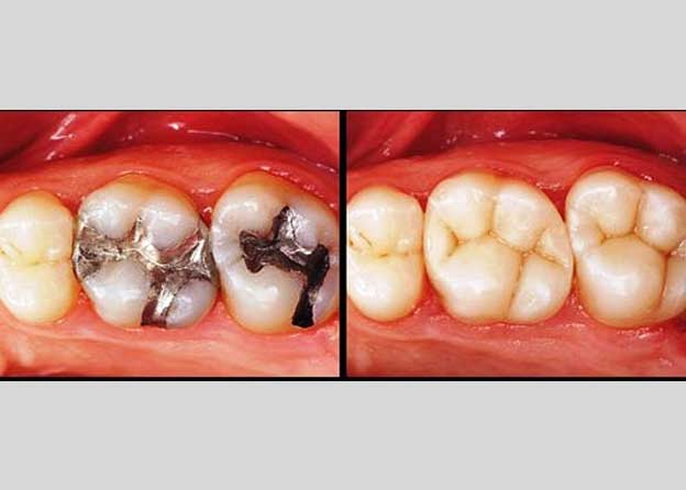 Esthetic dentistry (Filling) - Orocare