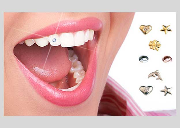 Tooth jewellery - Orocare